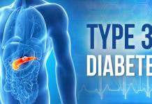 Type 3C Diabetes