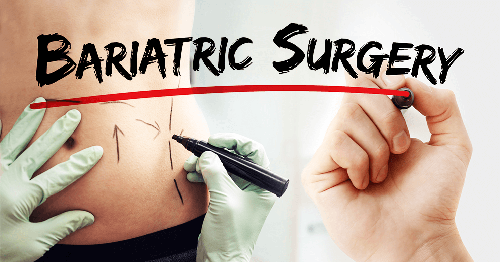 diabetes, bariatric surgery, gastric bypass, biliopancreatic diversion