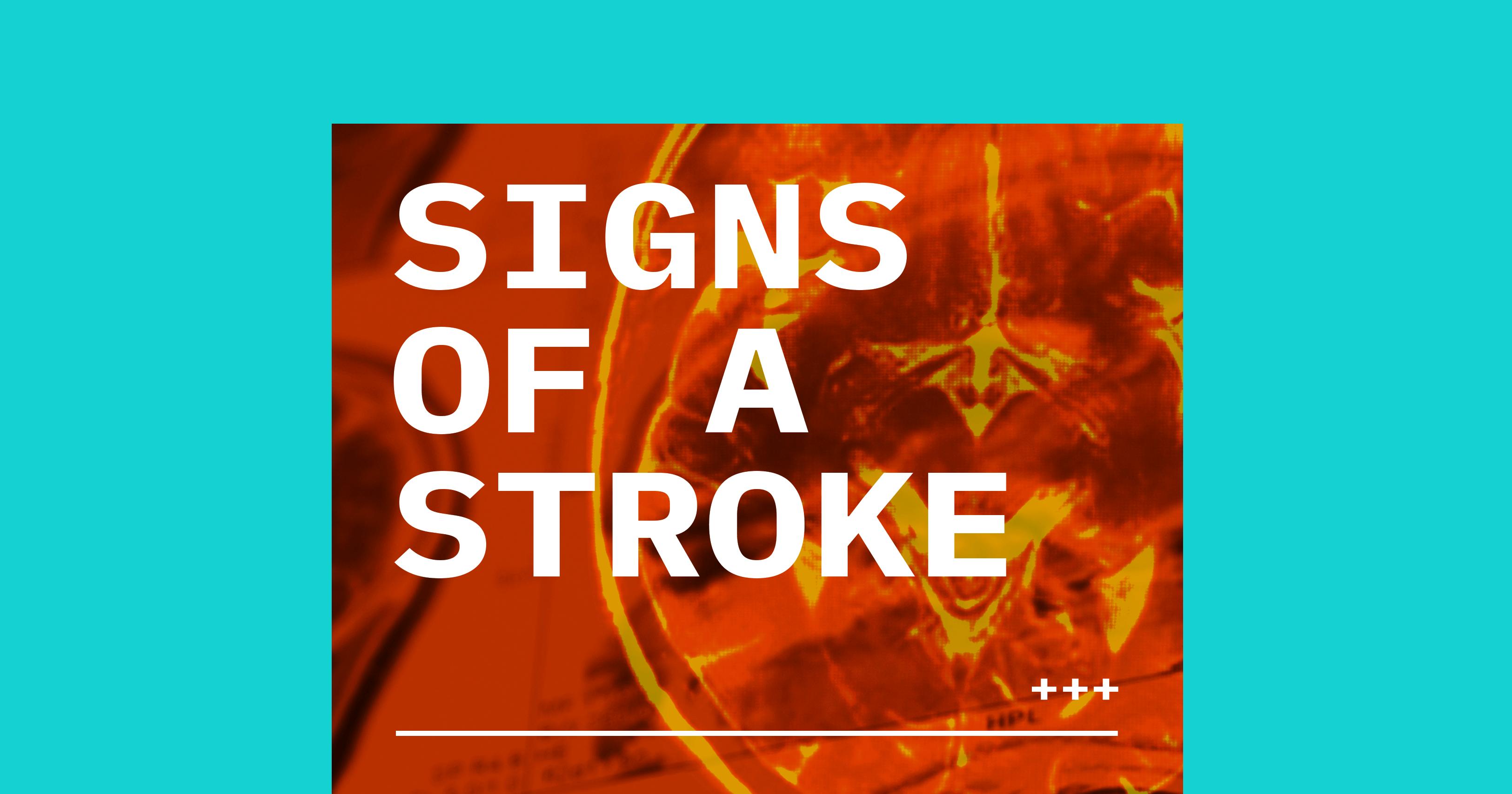 stroke, stroke symptoms, ischemia, ischemic stroke